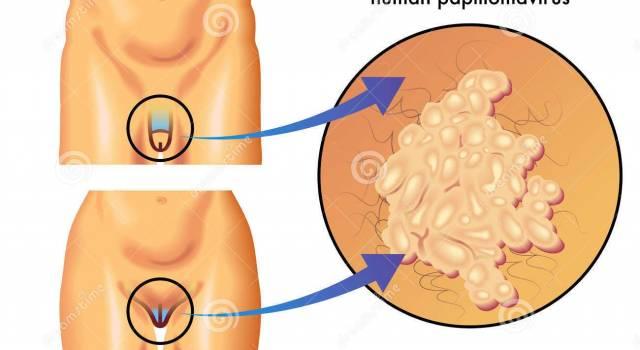 papilloma virus su uomo
