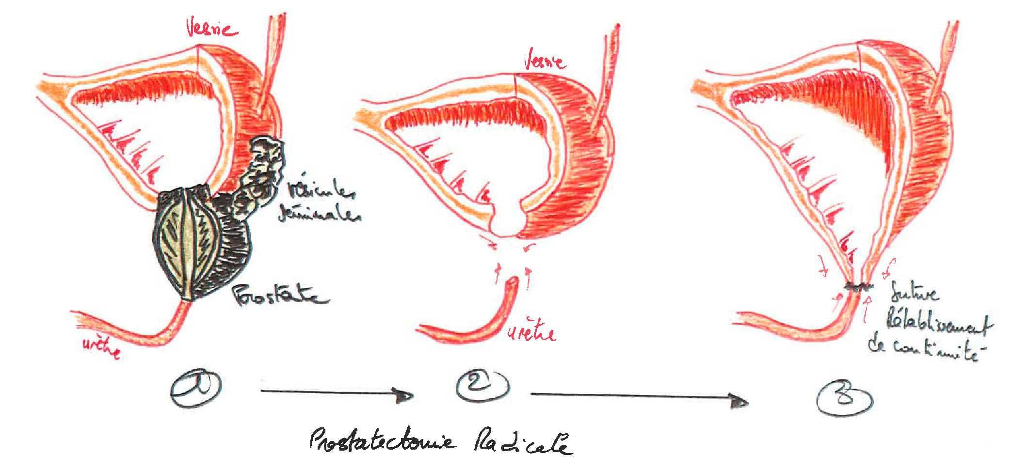 Prostatectomia radicale e incontinenza