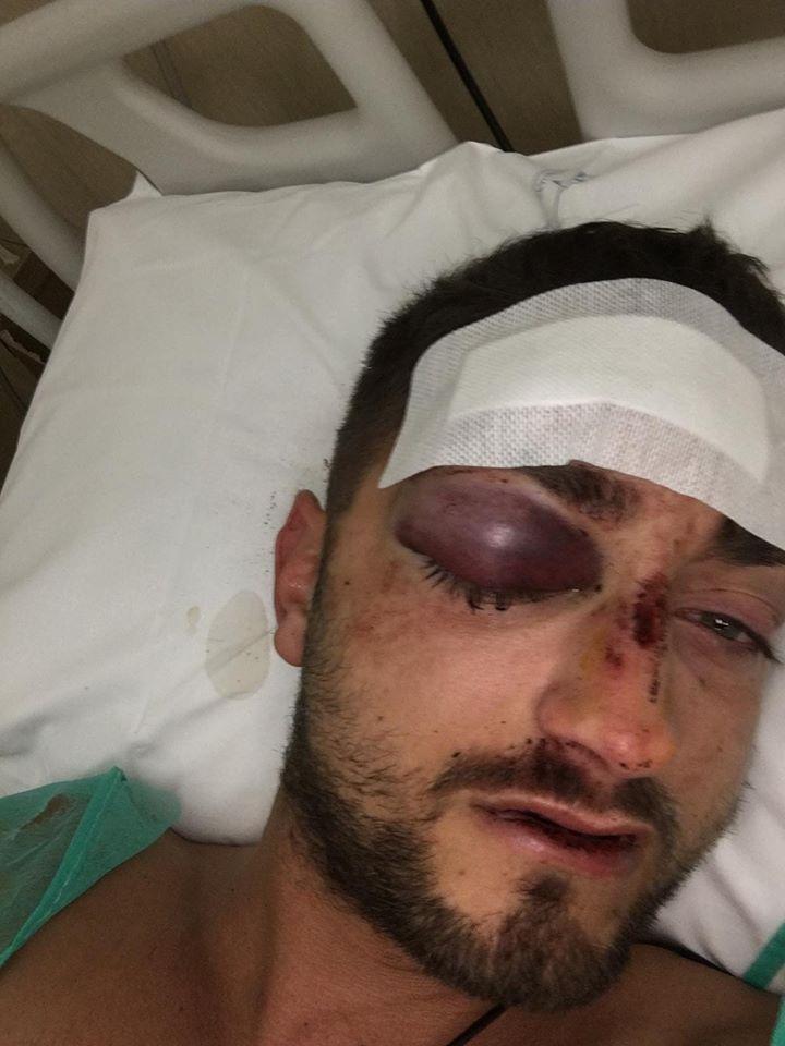 """Poliziotto massacrato in pineta a Viareggio, Fervicredo: """"Gli offriamo tutela legale"""""""
