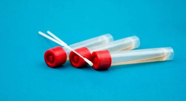 Coronavirus, no ai test dei privati